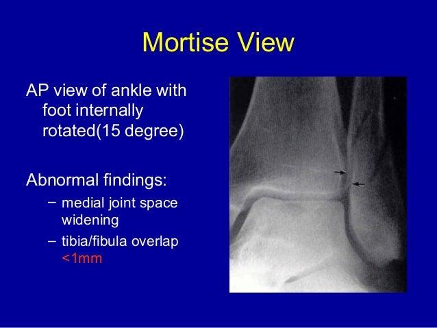 Ankle injury amanj