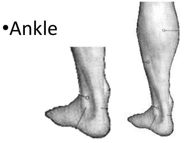 •Ankle