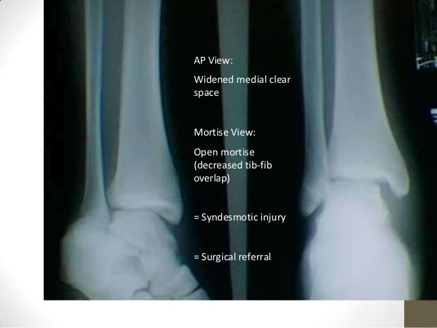 Ankle Joint Radiography