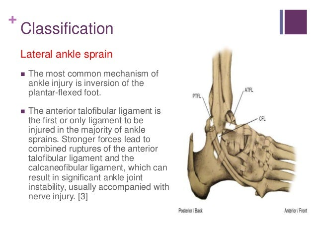 an introduction to ankle sprains Introduction physiotherapy in the uk for ankle  welcome to atherapy's patient resource about ankle sprain and instability an ankle sprain is a common injury and usually results when the ankle is twisted, or turned in (inverted) the term sprain signifies injury to the soft tissues, usually the ligaments, of the ankle.