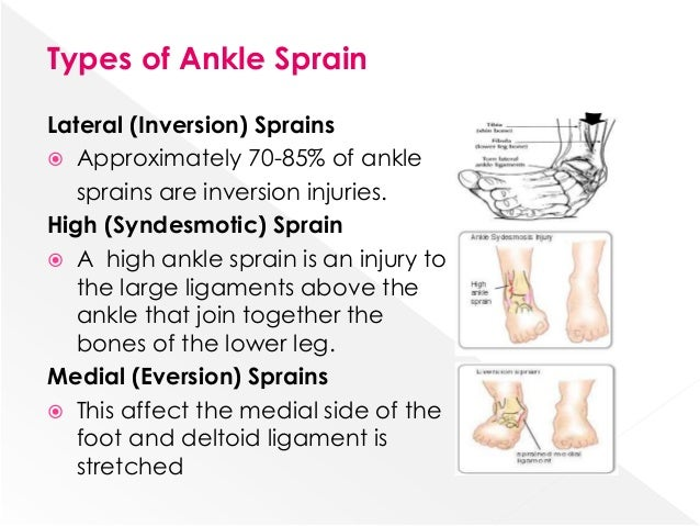 What are the types of ankle sprains?