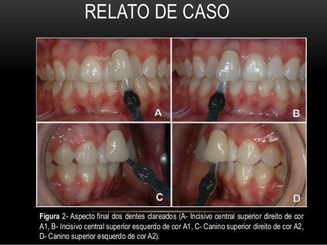Analise Do Clareamento Dental Caseiro Realizado Tcc1