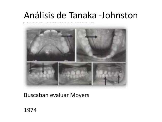 Análisis de modelos en dentición mixta