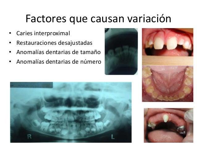 Factores que causan variación  • Caries interproximal  • Restauraciones desajustadas  • Anomalías dentarias de tamaño  • A...