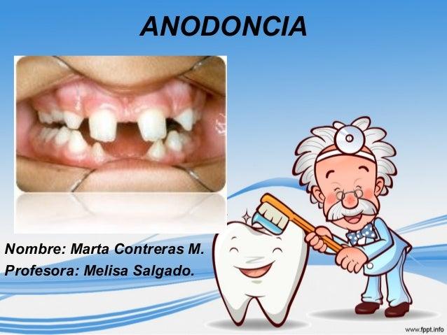 ANODONCIA Nombre: Marta Contreras M. Profesora: Melisa Salgado.