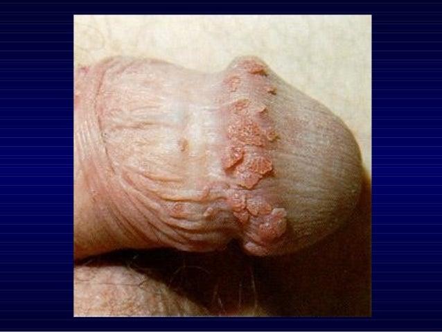 Anogeneital warts