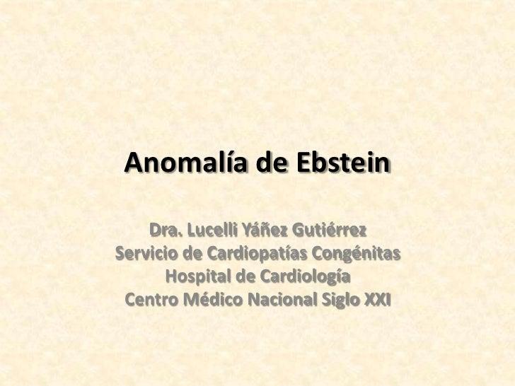 Anomalía de Ebstein    Dra. Lucelli Yáñez GutiérrezServicio de Cardiopatías Congénitas      Hospital de Cardiología Centro...