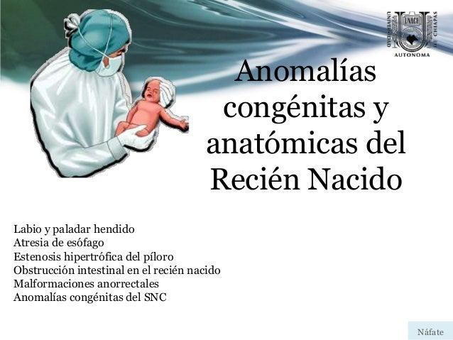 Anomalías congénitas y anatómicas del Recién Nacido Labio y paladar hendido Atresia de esófago Estenosis hipertrófica del ...