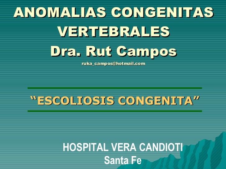 "ANOMALIAS CONGENITAS VERTEBRALES Dra. Rut Campos [email_address] "" ESCOLIOSIS CONGENITA"" HOSPITAL VERA CANDIOTI Santa Fe"