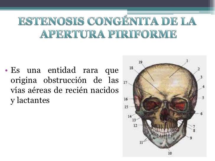Contemporáneo Anatomía Apertura Piriforme Ornamento - Anatomía de ...