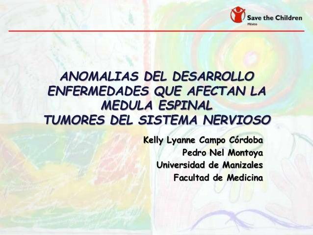 ANOMALIAS DEL DESARROLLO ENFERMEDADES QUE AFECTAN LA MEDULA ESPINAL TUMORES DEL SISTEMA NERVIOSO Kelly Lyanne Campo Córdob...