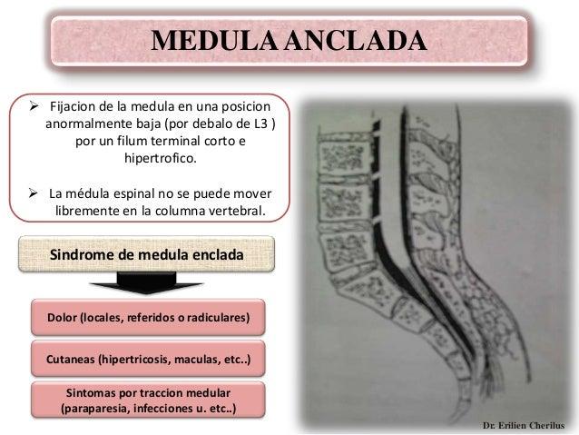 Los cambios distróficos en los cuerpos de las vértebras sheynogo del departamento de la columna vert