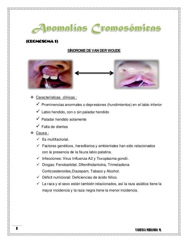 VANESSA MIRANDA M.1 (CROMOSOMA 1) SÍNDROME DE VAN DER WOUDE  Características clínicas :  Prominencias anormales o depres...