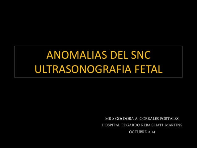 ANOMALIAS DEL SNC  ULTRASONOGRAFIA FETAL  MR 2 GO: DORA A. CORRALES PORTALES  HOSPITAL EDGARDO REBAGLIATI MARTINS  OCTUBRE...