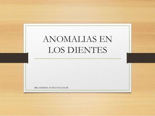ANOMALIAS EN  LOS DIENTES  DRA.MARISOL NUÑEZ BALTAZAR