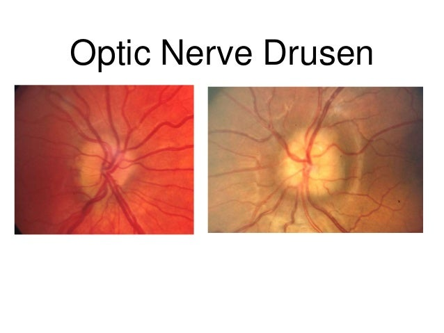 Optic Disc Drusen