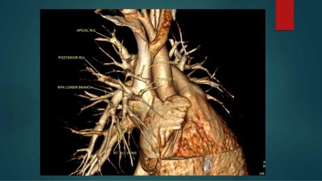 Anomalous pulmonary venous drainage total & partial CT role