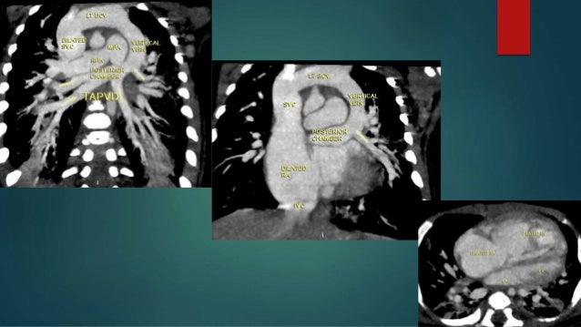 CT role  Confirm the diagnosis ,,,,, Anatomy .  Exclude obstruction of the vertical /descending vein.  Size of ASD is i...