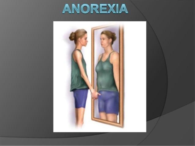  El primer caso de anorexia se dio en  Catalina de Siena. Con 26 años su idea  de dedicar su vida a Dios chocaron con  lo...