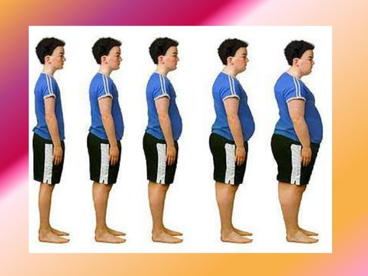 Anorexia and obesity  Obese Vs Anorexic