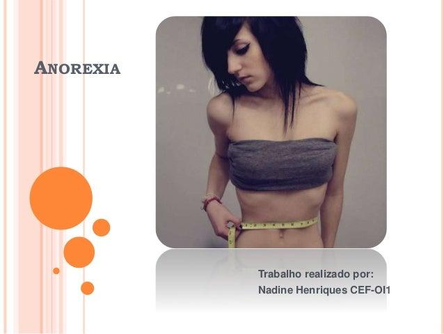ANOREXIA Trabalho realizado por: Nadine Henriques CEF-OI1