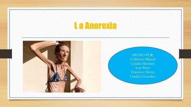 L a Anorexia HECHO POR: Gullermo Mirasol Claudia Martinez Luis Perez Francisco Torres Candela González