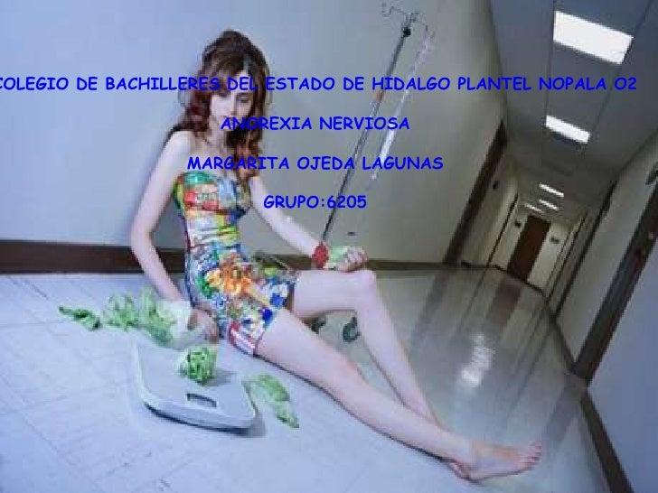 COLEGIO DE BACHILLERES DEL ESTADO DE HIDALGO PLANTEL NOPALA O2<br /> ANOREXIA NERVIOSA <br />MARGARITA OJEDA LAGUNAS<br />...