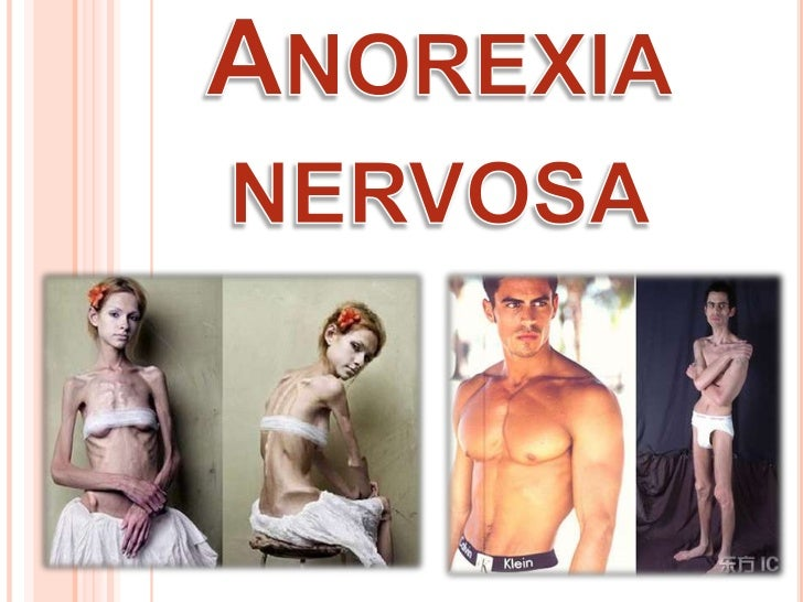 an introduction to the issue of anorexia nervosa Learning the basics: an introduction to eating disorders & body image issues people who develop anorexia nervosa, for example, are often.