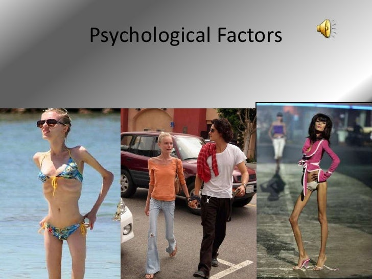 an introduction to the condition anorexia nervosa Research paper looking at anorexia nervosa print reference this apa participants believed the person with anorexia nervosa was most to blame for his/her condition.