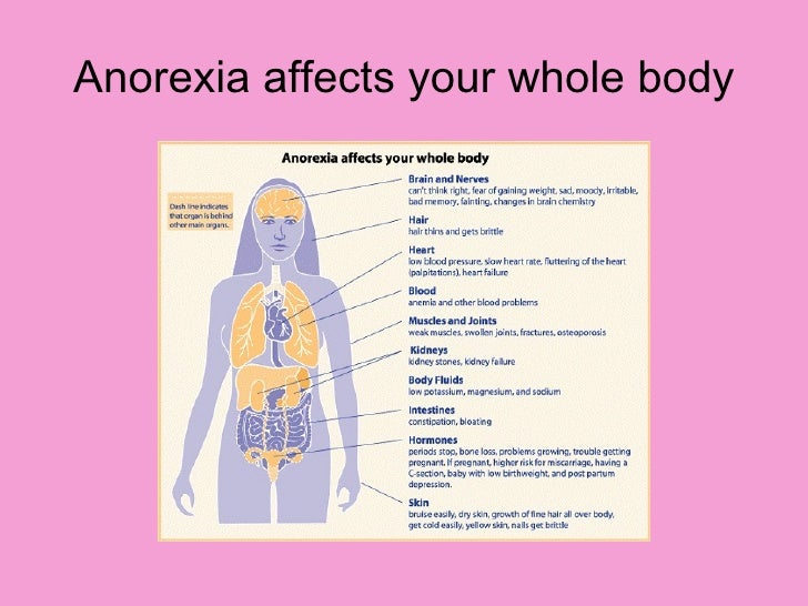 anorexia essay thoughts that can Eating disorders are real, complex medical and psychiatric illnesses that can have serious consequences for health, productivity and relationships eating disorders, including anorexia nervosa, bulimia nervosa, binge eating disorder and osfed (other specified feeding or eating disorder), are bio.