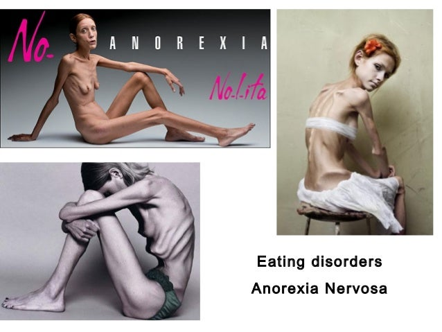 how does social media cause eating disorders