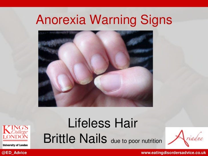 Anorexia Warning Signs Lifeless Hair Brittle Nails