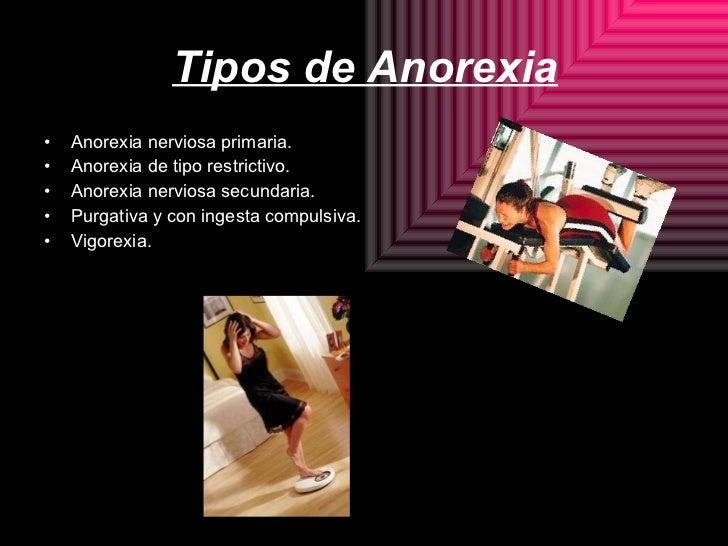 Tipos de Anorexia <ul><li>Anorexia nerviosa primaria. </li></ul><ul><li>Anorexia de tipo restrictivo. </li></ul><ul><li>An...