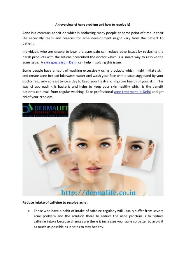 An overview of Acne problem and how to resolve it? Acne is a common condition which is bothering many people at some point...