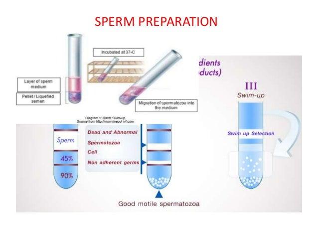 of Prenatal sperm preparation