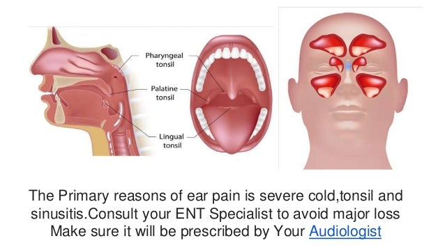 understanding the causes and treatment of ear problems and hearing loss Studying inflammation and the inner ear, researchers at washington university  hope to better understand hearing loss and disease.