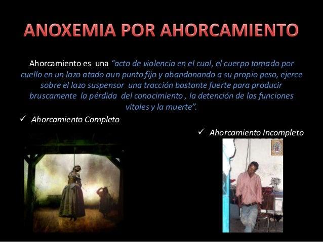 Anoxemia por ahorcamiento y anoxemia por extrangulación Slide 3
