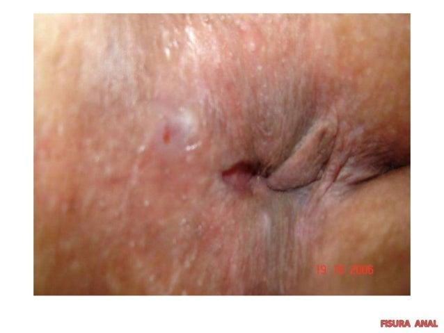 Las medicinas no ayudan del acné