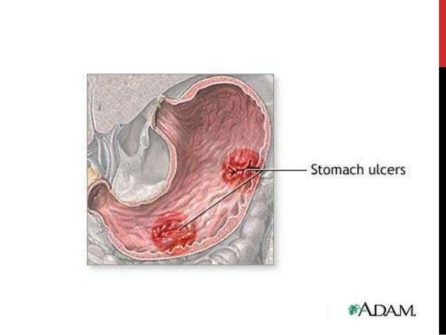 Antacidi i antisekretorni lijekovi Slide 3
