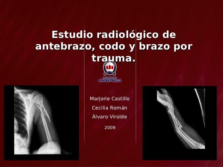 Estudio radiológico de antebrazo, codo y brazo por           trauma.            Marjorie Castillo          Cecilia Román  ...