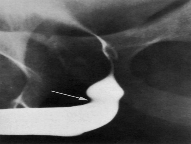Antegrade Urethrogram Definition: Filling the bladder with contrast media through urethral catheter or by percutaneous ne...