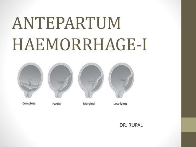 ANTEPARTUM HAEMORRHAGE-I DR. RUPAL