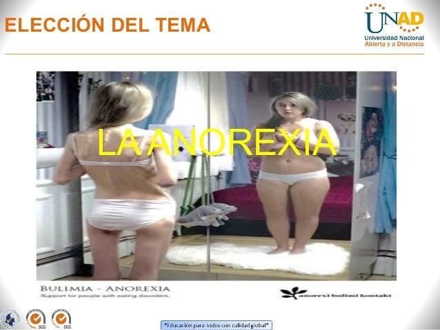Ante proyecto sobre la anorexia Slide 2