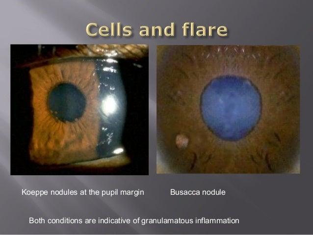Common cases: Anterior Chamber and Iris