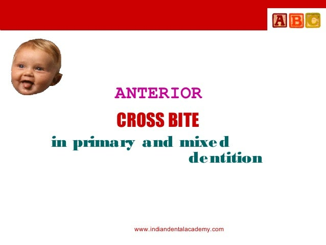 ANTERIOR CROSS BITE in primary and mixe d de ntition  www.indiandentalacademy.com