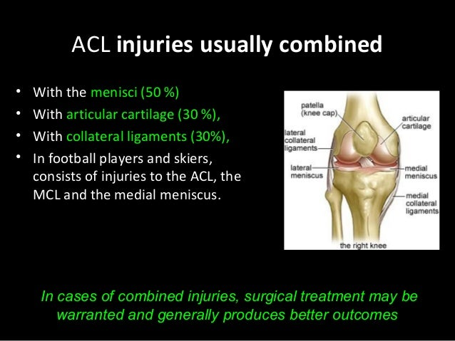 a discussion on the nature of the anterior crucial ligament acl injury Effect of anterior cruciate ligament injury and reconstruction on proprioceptive acuity of knee rotation in the transverse plane am j sports med 200937(8):1618–26 pubmed view article google scholar strehl a, eggli s the value of conservative treatment in ruptures of the anterior cruciate ligament (acl) j trauma 200762(5):1159–62.