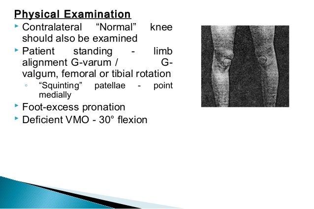 Anterior Knee Pain