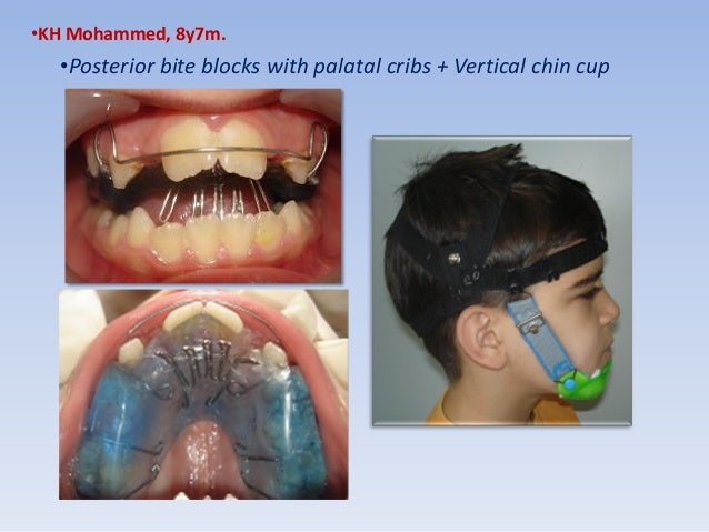 anterior open bite treatment deciduous and mixed dentition