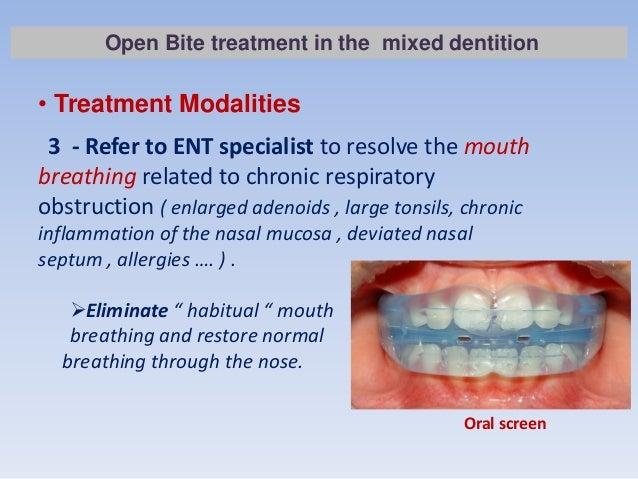 how to treat anterior open bite