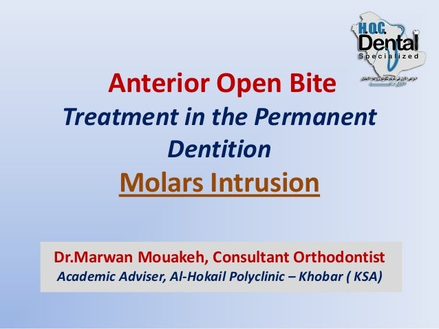 Anterior Open Bite Treatment In The Permanent Dentition Part 2